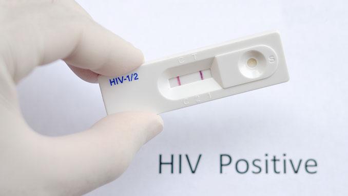 Ansatz für HIV-Impfung - © jarun011 - Fotolia