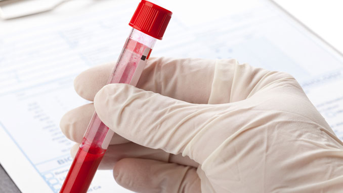 Antikörper HIV-Therapie - © Shawn Hempel - Fotolia