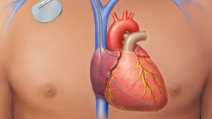 Gesundes Herz - © lom123 - Fotolia