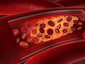 Verengte Herzarterien - © - psdesign1 - Fotolia